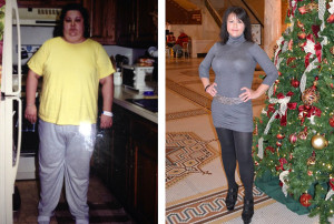 massive weight loss