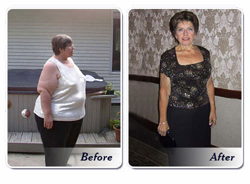 Gastric Bypass Surgery Facts