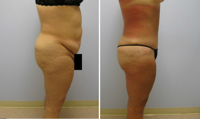 My Bariatric Life before and after tummy tuck results