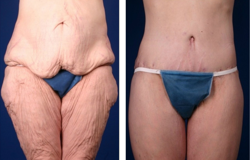 excess skin after weight loss result