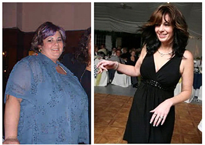 obesity surgery before and after