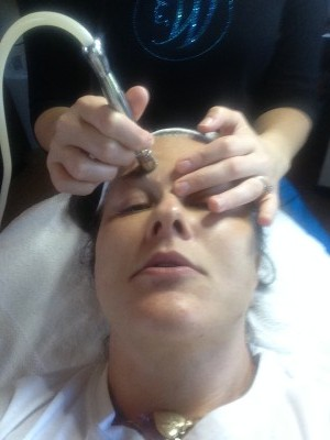 Acne Facial Microdermabrasion